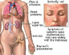 systemic lupus erythematosous clinical signs